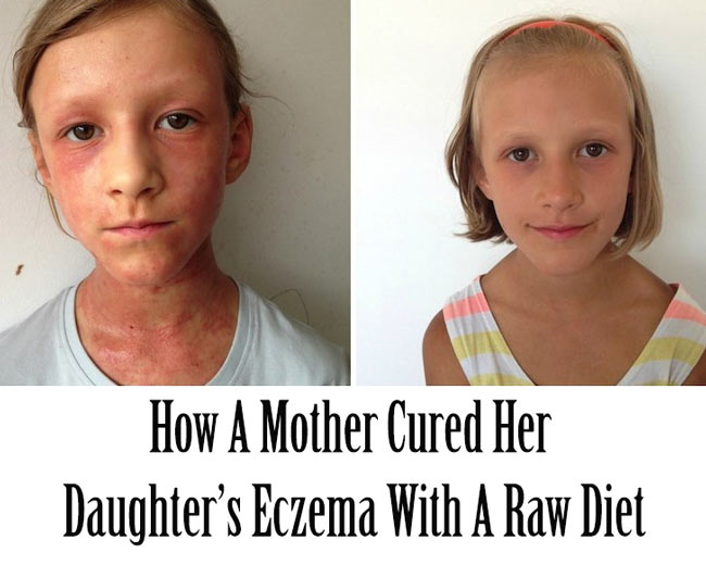 How A Mother Cured Her Daughters Eczema With Raw Diet