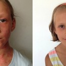 How A Mother Cured Her Daughter's Eczema With A Raw Diet